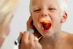 Как лечить ангину у годовалого ребенка