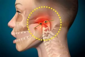 Болит скула на лице при нажатии