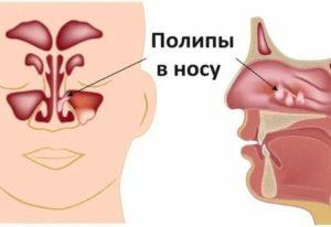 Разрастание слизистой носа