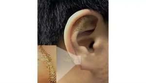 Пленка в ухе