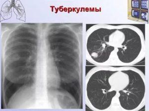 Туберкулёма лёгких заразна или нет