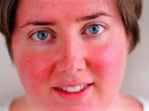 Почему щеки красные постоянно