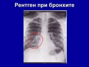 Как выглядит бронхит на рентгеновском снимке