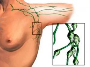 Подмышечная лимфаденопатия слева