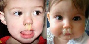 У двухмесячного ребенка сопли что делать
