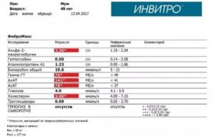 Анализ крови на коклюш в инвитро