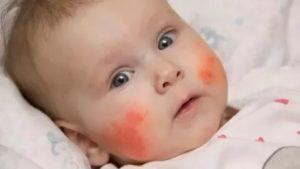 Пищевая аллергия у ребенка комаровский
