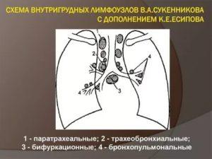 Паратрахеальные лимфоузлы где находятся