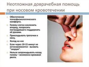 Алгоритм оказания неотложной помощи при носовом кровотечении