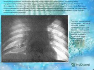 Периваскулярные изменения в легких