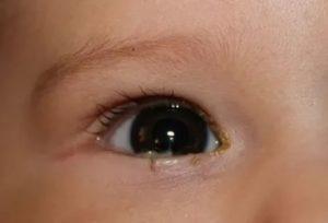 У ребёнка гноятся глаза и насморк