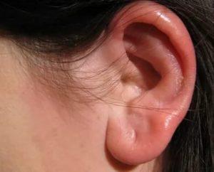 Опухла мочка уха шишка чем лечить