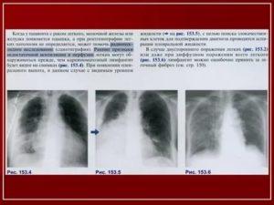 Какая температура при раке легких