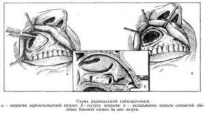 Гайморотомия послеоперационный период