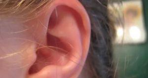 Горит внутри уха