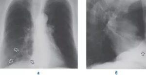 Фиброзно очаговые изменения в легких
