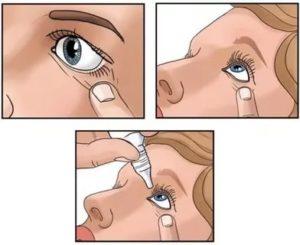Правила закапывания капель в глаза