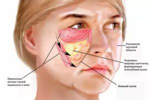Боль в области скулы на лице