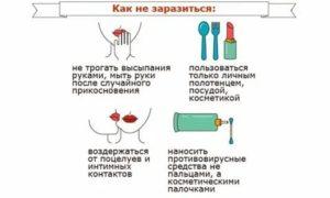 Можно ли заразиться герпесом воздушно капельным путем