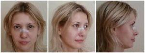Отек после ринопластики кончика носа