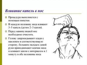 Как правильно капать капли в нос