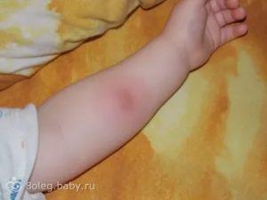 Вред манту комаровский