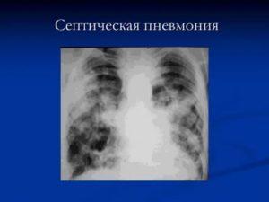 Асептическая пневмония