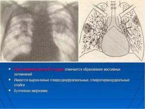 Плевро диафрагмальная спайка справа