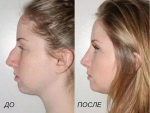 Как убрать горб на носу