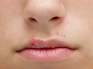 Герпес на губе у ребенка 4 года