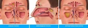 Забиты пазухи носа лечение