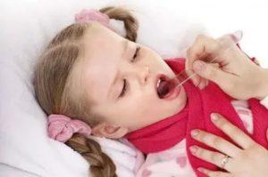 Частые ангины у ребенка причины