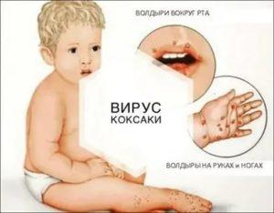 Сыпь при орви у ребенка фото