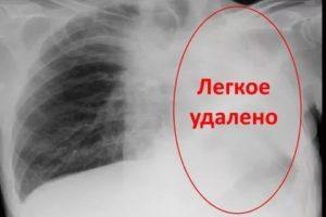 Удаление легкого при туберкулезе