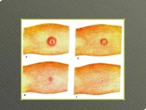 Как по манту определить туберкулез
