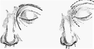 Фронтотомия лобной пазухи