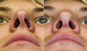 Удаление хряща в носу