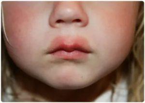 Чем снять отек горла у ребенка