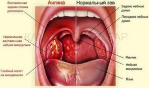 Рецидив ангины после приема антибиотиков