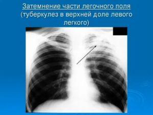 Затемнение в легких после пневмонии