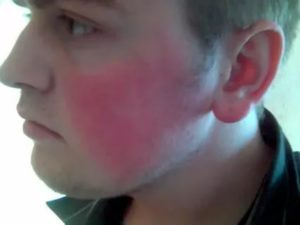 Почему красные щеки у подростка
