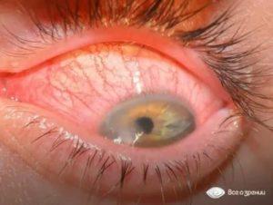 Слизистые тяжи в глазах
