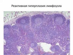 Гиперплазированные лимфоузлы что это
