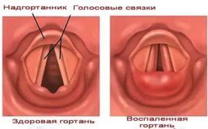 Перенапряжение голосовых связок лечение