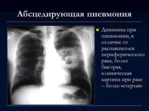 Пневмония и рак легких как отличить