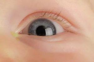 Белый гной в глазах