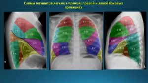 Сегменты легкого на рентгенограмме