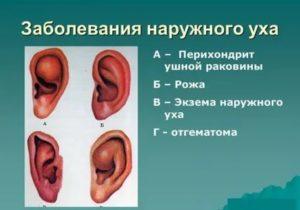 Хондроперихондрит ушной раковины
