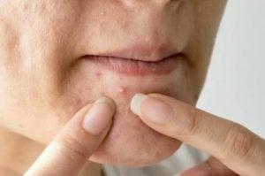 Как вылечить простудный прыщ на лице