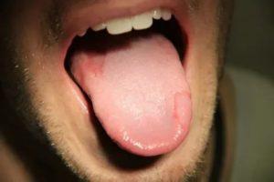 Кровяная шишка на языке